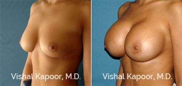 Patient 63 3/4 View Breast Augmentation Beverly Hills Cosmetic Plastic Surgery Doc