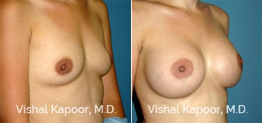 Patient 65 3/4 View Breast Augmentation Beverly Hills Cosmetic Plastic Surgery Doc