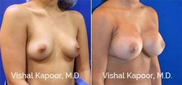 Patient 69 3/4 View Breast Augmentation Beverly Hills Cosmetic Plastic Surgery Doc