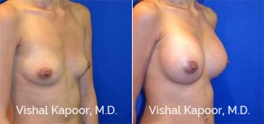 Patient 70 3/4 View Breast Augmentation Beverly Hills Cosmetic Plastic Surgery Doc