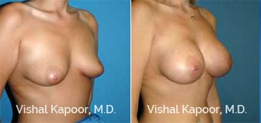 Patient 71 3/4 View Breast Augmentation Beverly Hills Cosmetic Plastic Surgery Doc