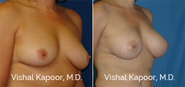 Patient 09 3/4 View Breast Augmentation Beverly Hills Cosmetic Plastic Surgery Doc