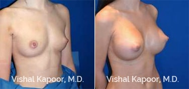 Patient 72 3/4 View Breast Augmentation Beverly Hills Cosmetic Plastic Surgery Doc