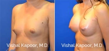 Patient 74 3/4 View Breast Augmentation Beverly Hills Cosmetic Plastic Surgery Doc
