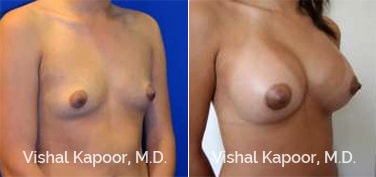 Patient 75 Right Side 3/4 View Breast Augmentation Beverly Hills Cosmetic Plastic Surgery Doc