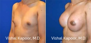 Patient 76 3/4 View Breast Augmentation Beverly Hills Cosmetic Plastic Surgery Doc