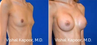 Patient 77 3/4 View Breast Augmentation Beverly Hills Cosmetic Plastic Surgery Doc