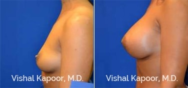 Patient 78 Left Side View Breast Augmentation Beverly Hills Cosmetic Plastic Surgery Doc