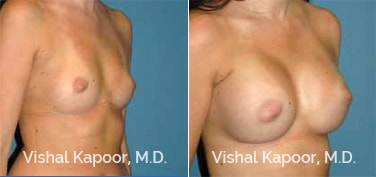 Patient 79 3/4 View Breast Augmentation Beverly Hills Cosmetic Plastic Surgery Doc