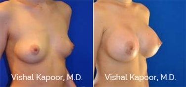 Patient 80 3/4 View Breast Augmentation Beverly Hills Cosmetic Plastic Surgery Doc