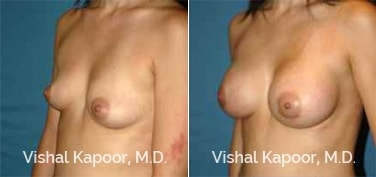 Patient 81 3/4 View Breast Augmentation Beverly Hills Cosmetic Plastic Surgery Doc