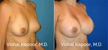 Patient 82 3/4 View Breast Augmentation Beverly Hills Cosmetic Plastic Surgery Doc