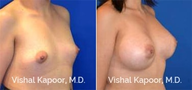 Patient 83 3/4 View Breast Augmentation Beverly Hills Cosmetic Plastic Surgery Doc