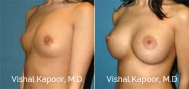 Patient 84 3/4 View Breast Augmentation Beverly Hills Cosmetic Plastic Surgery Doc