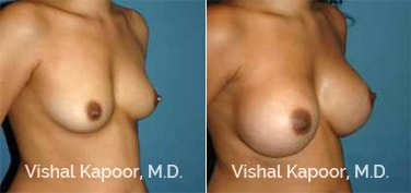 Patient 85 3/4 View Breast Augmentation Beverly Hills Cosmetic Plastic Surgery Doc