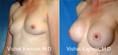 Patient 11 3/4 View Breast Augmentation Beverly Hills Cosmetic Plastic Surgery Doc