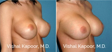 Patient 01 3/4 View Breast Augmentation Revision Beverly Hills Cosmetic Plastic Surgery Doc