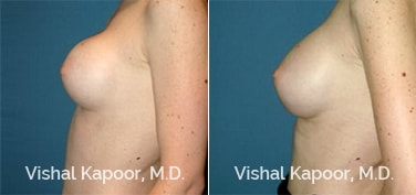 Patient 03 Side View Breast Augmentation Revision Beverly Hills Cosmetic Plastic Surgery Doc