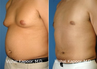 Patient 02 3/4 View Male Breast Reduction Beverly Hills Cosmetic Plastic Surgery Doc