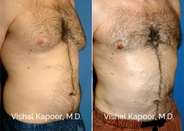 Patient 03 3/4 View Male Breast Reduction Beverly Hills Cosmetic Plastic Surgery Doc