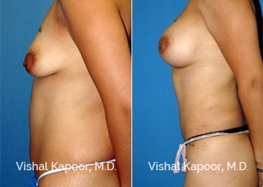 Patient 02 Side View Breast Augmentation Beverly Hills Cosmetic Plastic Surgery Doc