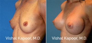 Patient 03 3/4 View Breast Augmentation Beverly Hills Cosmetic Plastic Surgery Doc