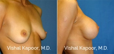 Patient 13 Side View Breast Augmentation Beverly Hills Cosmetic Plastic Surgery Doc