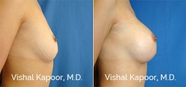 Patient 14 Side View Breast Augmentation Beverly Hills Cosmetic Plastic Surgery Doc