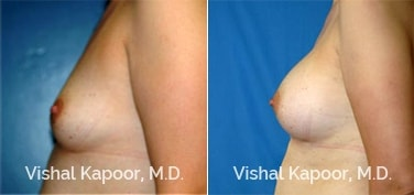 Patient 15 Side View Breast Augmentation Beverly Hills Cosmetic Plastic Surgery Doc