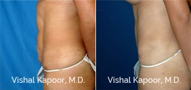 Patient 16 Side View Tummy Tuck Beverly Hills Cosmetic Plastic Surgery Doc
