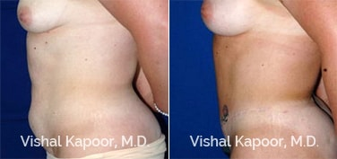 Patient 21 Side View Tummy Tuck Beverly Hills Cosmetic Plastic Surgery Doc