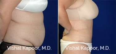 Patient 22 Side View Tummy Tuck Beverly Hills Cosmetic Plastic Surgery Doc