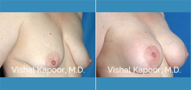 Breast Lift Patient 6