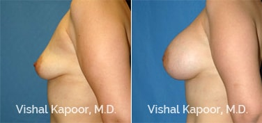 Patient 18 Side View Breast Augmentation Beverly Hills Cosmetic Plastic Surgery Doc