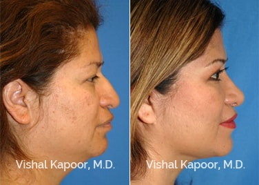 Patient 07 Side View Revision Rhinoplasty Beverly Hills Cosmetic Plastic Surgery Doc