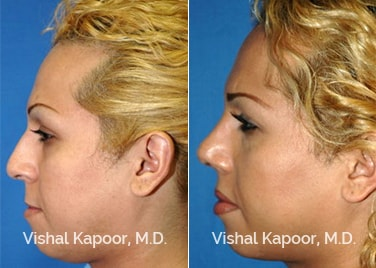 Revision Rhinoplasty Patient 08