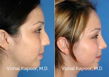 Revision Rhinoplasty Patient 11