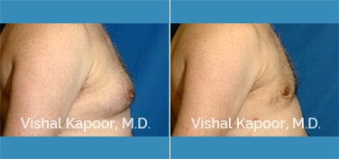 Male Breast Reduction Patient 7