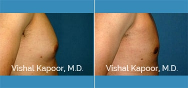Male Breast Reduction Patient 09
