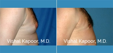 Patient 11 Side View Male Breast Reduction Beverly Hills Cosmetic Plastic Surgery Doc