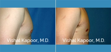 Patient 20 Side View Male Breast Reduction Beverly Hills Cosmetic Plastic Surgery Doc
