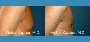 Male Breast Reduction Patient 22