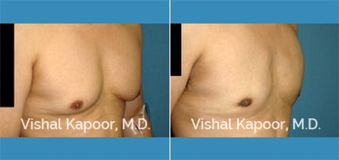 Patient 28 Right Side 3/4 View Male Breast Reduction Beverly Hills Cosmetic Plastic Surgery Doc