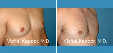 Patient 29 Right Side 3/4 View Male Breast Reduction Beverly Hills Cosmetic Plastic Surgery Doc
