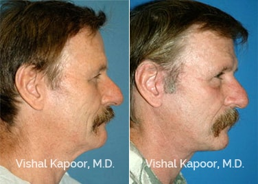 Patient 01 Side View Face Neck Rejuvenation Beverly Hills Cosmetic Plastic Surgery Doc