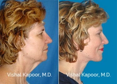 Face/Neck Rejuvenation Patient 2