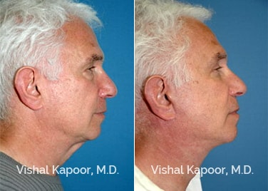 Patient 03 Side View Face Neck Rejuvenation Beverly Hills Cosmetic Plastic Surgery Doc