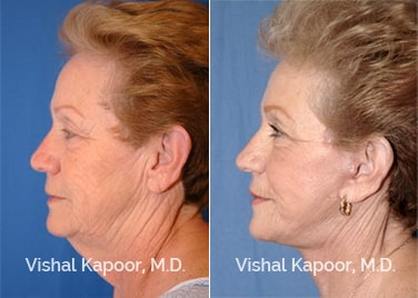 Patient 04 Side View Face Neck Rejuvenation Beverly Hills Cosmetic Plastic Surgery Doc
