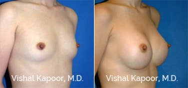Patient 01 3/4 View Breast Augmentation Beverly Hills Cosmetic Plastic Surgery Doc