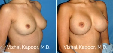 Patient 21 3/4 View Breast Augmentation Beverly Hills Cosmetic Plastic Surgery Doc